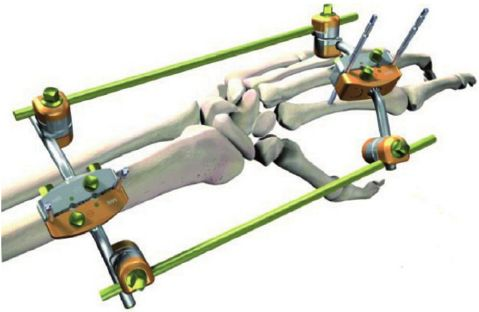 Global Trauma Fixation Devices Market 2017-2021 with Stryker, Zimmer Biomet & Smith & Nephew Dominating - Research and Markets - http://www.orthospinenews.com/global-trauma-fixation-devices-market-2017-2021-with-stryker-zimmer-biomet-smith-nephew-dominating-research-and-markets/