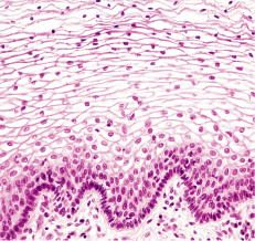 STRATIFIED SQUAMOUS EPITHELIAL Histology and Skin Flashcards | Quizlet