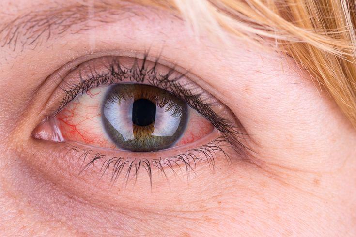 Egy álmatlan éjszaka vagy klóros vizű uszoda után általában egyértelmű, mi a baj a szemünkkel. Néha azonban előfordulhat, hogy a megszokottnak tűnő rendellenesség valamilyen súlyosabb betegségre utal.