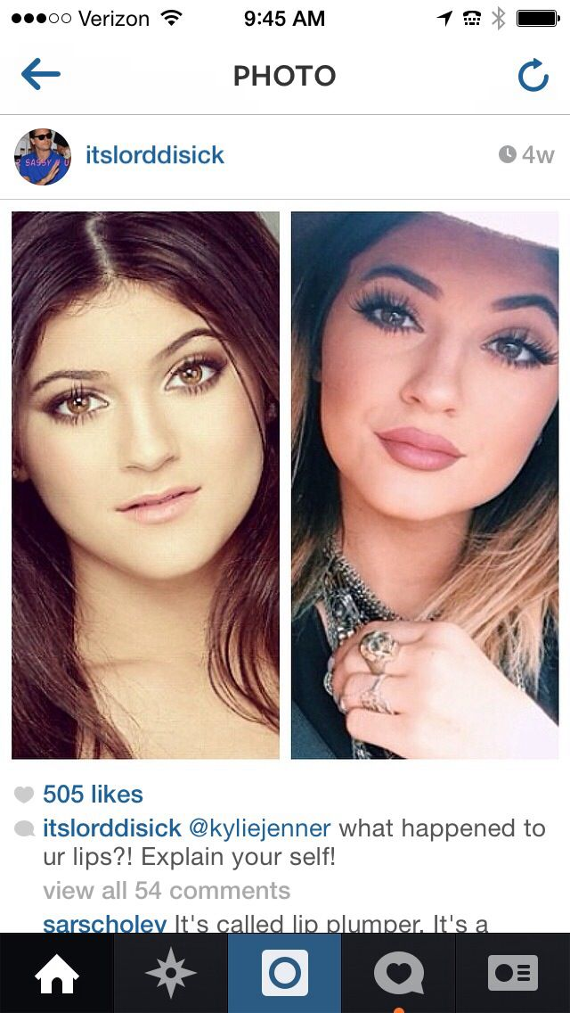 kylie jenner lip injection.... here we go Kris Jenner raises kids filled with vanity...  this is who our children look to.. SAD SAD WORLD. be happy with what you're blessed with....
