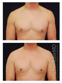 Before and after gynecomastia surgery. Learn more at: http://www.michaellawmd.com/gynecomastia-male-breast-reduction.html