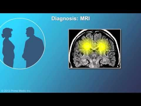 Have you ever wondered exactly how Multiple Sclerosis is diagnosed? This detailed animation from our friends Animated MS Patient explains the process of receiving an MS diagnosis, and even breaks down how a neurologist determines the type of MS a patient has. http://animatedmspatient.com/en/diagnosis-of-multiple-sclerosis-animation.phtml#