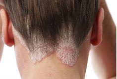 Sowohl Schuppen als auch das seborrhoische Ekzem sind zwei häufige Leiden, die bei jedem in jedem Alter auftreten können. Die Beschwerden sind unangenehm und lästig. Schuppen können beispielsweise durch trockene Kopfhaut entstehen.