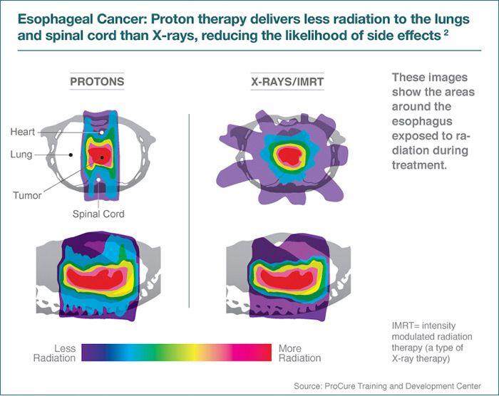Best 25+ Proton radiation ideas on Pinterest | Radiation therapy ...