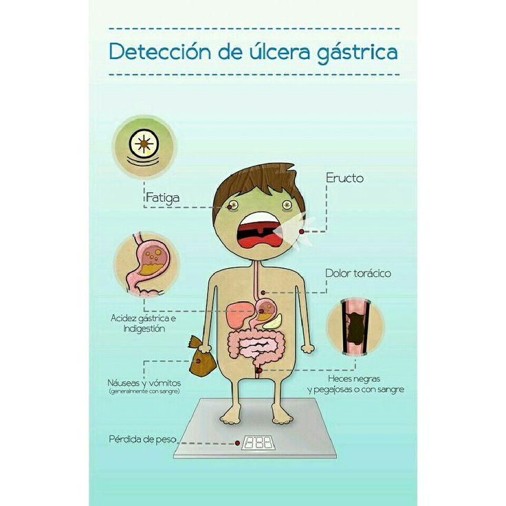 Sintomas de una Ulcera Gastrica #TipVital