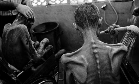 This photo shows the skin and bones of clearly malnourished people. The photograph makes the viewer feel the pain of the people pictured. It's a sad thing to see and is an insight into third world countries and poverty.