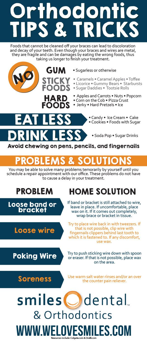 Wearing braces can be troublesome at times - This is an infographic to help put your worries at ease with easy at-home tips and guidelines!
