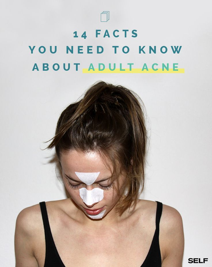 Self Magazine shares 7 reasons you have adult acne, and 7 ways to get rid of It featuring our Rapid Age Spot and Pigment Lightening Serum