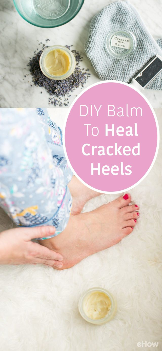 Our heels often bear the brunt, which can cause painful chapped and cracked areas. Give tired feet a warm foot bath followed by a gentle scrub then lather on this DIY soothing balm to heal cracked heels overnight. http://www.ehow.com/how_2050320_heal-cracked-heels.html?utm_source=pinterest.com&utm_medium=referral&utm_content=freestyle&utm_campaign=fanpage