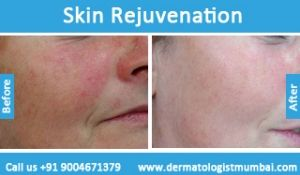For #Botox #treatment Contact Dr. Rinky Kapoor - http://dermatologistmumbai.com/dermatology/botox.html