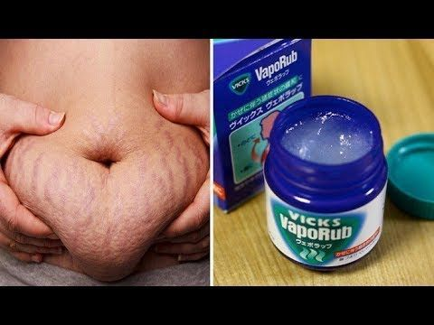 HOW TO USE VICKS VAPORUB TO GET RID OF ACCUMULATED BELLY FAT AND CELLULITE, ELIMINATE STRETCH - YouTube