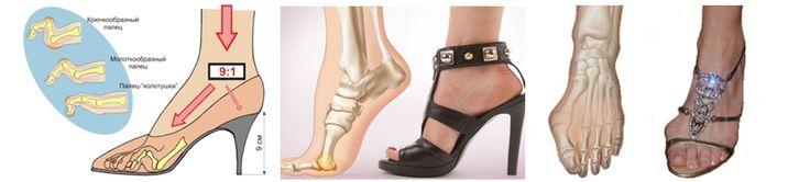 Обувь на высоких каблуках вызывает плоскостопие