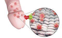 Os 6 Principais Sintomas da Herpes Genital