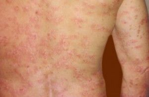 Learn Treatment for Guttate Psoriasis