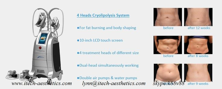 23 Best Coolsculpting Freeze Fat Cryolipolysis Slimming