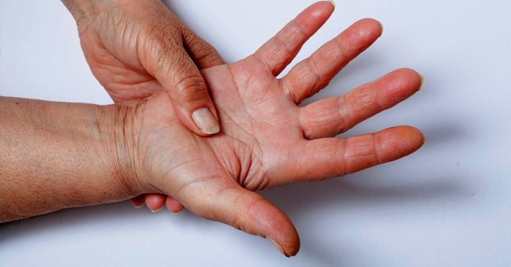 If you suspect that you have an Rheumatoid Arthritis, the most important steps to stopping and reversing your disease are to identify and then to treat the underlying cause. Conventional doctors only treat the symptoms of autoimmune diseases; they don't look to find the root cause.