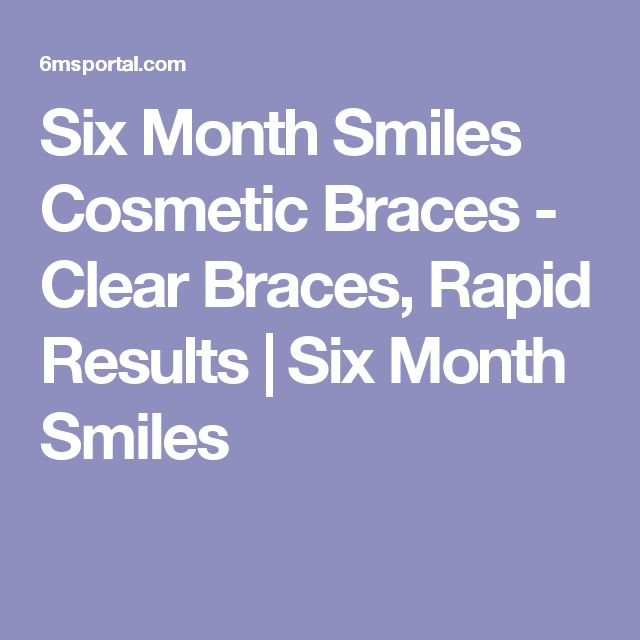 Six Month Smiles Cosmetic Braces - Clear Braces, Rapid Results  | Six Month Smiles