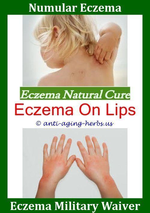Eczema Dermatitis Treatment Camomile Tea For Eczema Nu Skin