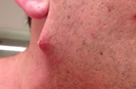 how to get rid of razor bumps and ingrown hairs