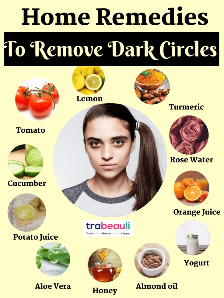 How to get rid of dark circles at home overnight