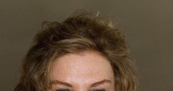 Mulher do ex-presidente Lula sofre AVC. Entenda o que é o derrame cerebral - Notícias - http://anoticiadodia.com/mulher-do-ex-presidente-lula-sofre-avc-entenda-o-que-e-o-derrame-cerebral-noticias/
