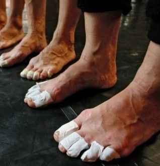 Dancing On Toes For Hours Can Cause Foot Pain Tape Helps