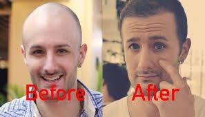 Contact at Revive Hair and Skin Clinic professional doctor forget best #hair #transplant #treatment in the UK. Hair transplant is a surgical method in which hair is taken from a part of the body to a bald part. Hair Transplant is useful to restore hair Loss. Get in touch for more info.