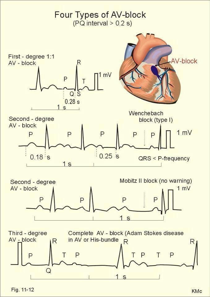 Heart blocks
