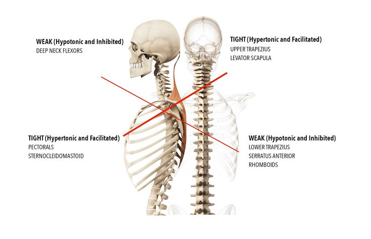 8 best Muscle Strain images on Pinterest | Muscle strain, Pain ...