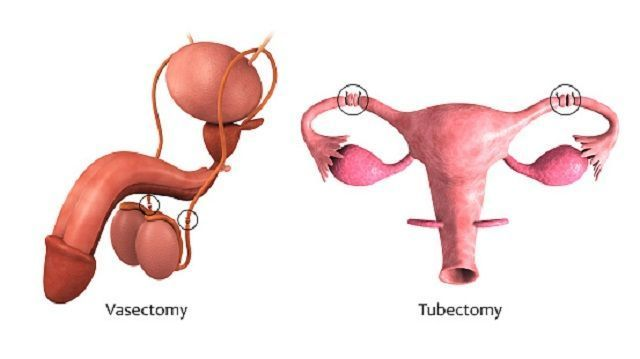 Lichen Sclerosus FAQs—What You Must Know About the Genitalia Disorder