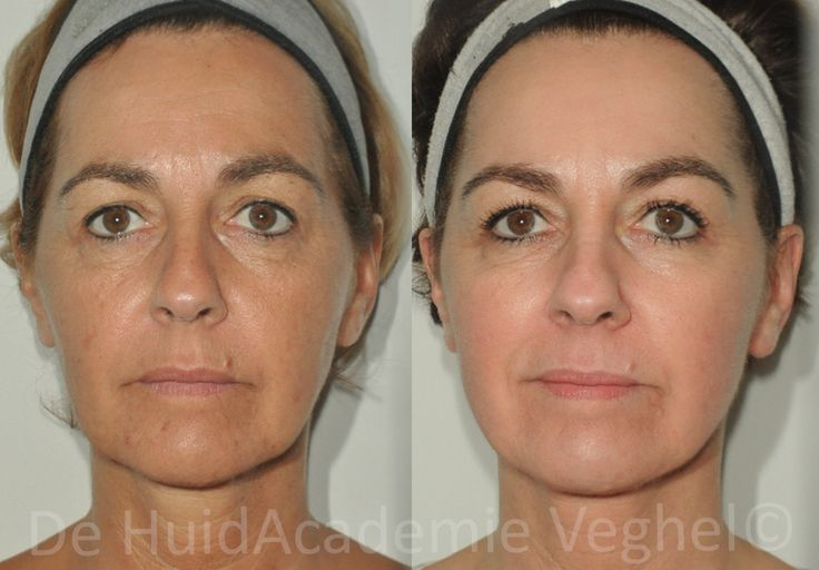 best treatment for sun damage on face