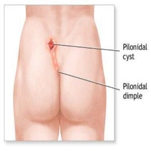 Top 10 Home Remedies For Pilonidal Cyst