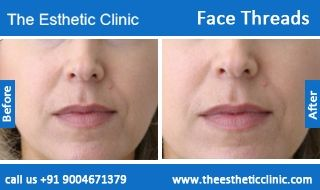 Face Thread Lift Surgery | Facial Threads Face lift Surgery in Mumbai, India.