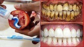 Magical Teeth Whitening Therapy, Toothpaste Tomatoes Mixed Scrub Face Splendor Guidelines