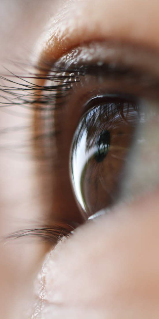 What are dry eye symptoms? - If you have dry eyes, it could actually be dry eye syndrome—a chronic problem with tear production, which can lead to serious eye issues if not treated. The problem? Although it sounds easy to spot, dry eye symptoms can be mistaken for other problems, sometimes for years, before getting a proper diagnosis.