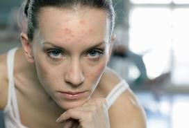 Adult acne stems from the same basic causes as all other acne. Plugged pores result from excess sebum and dead skin cells.