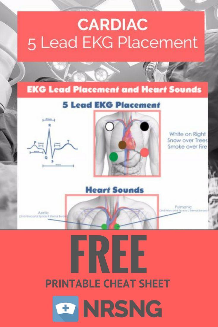 Best 25 ekg placement ideas on pinterest medical assistant free printable cheat sheet 5 lead ekg placement nursing school tips nrsng xflitez Choice Image