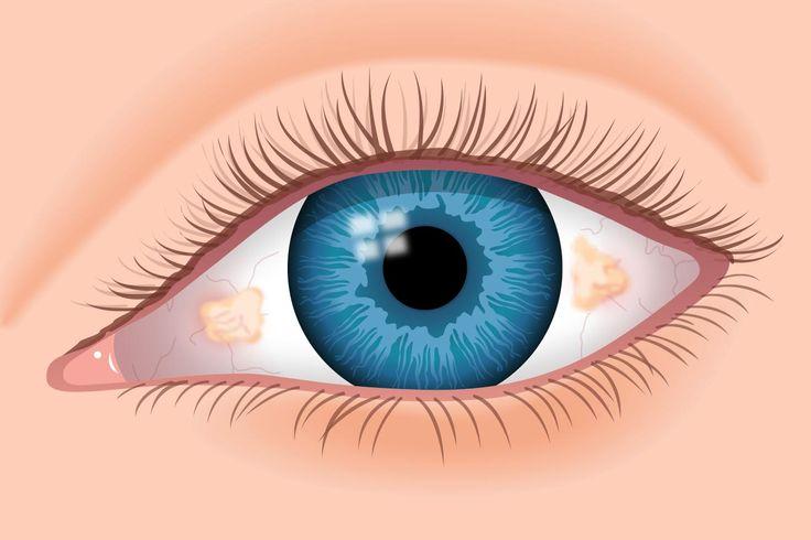 Pinguecula on the white of the eye