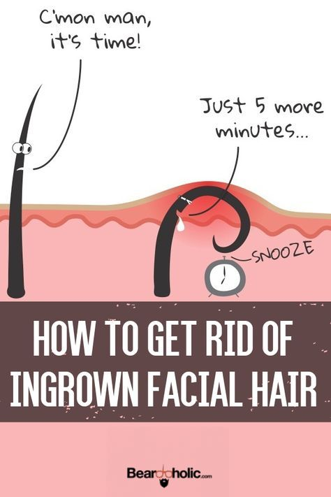 How To Get Rid Of Ingrown Facial Hair (Causes, Prevention, and Removal). Beard Care From Beardoholic.com