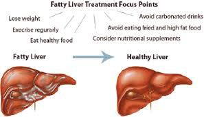 Fatty Liver Disease Treatment Focus Point
