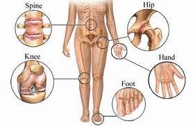 Penyebab Radang Sendi -, Penyakit radang sendi atau osteortritis sebenarnya adalah penyakit yang lazim menimpa orang berusia lanjut. Namun seiring dengan perubahan gaya hidup, penyakit yang sering disebut dengan pengapuran ini juga ditemukan pada kelompok usia muda.