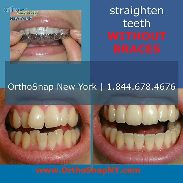 OrthoSnap is the very latest system for teeth straightening without braces. It's quick, easy to use, affordable and more effective than other methods | #OrthoSnapNewYork | #Manhattan and #Brooklyn | 1.844.678.4676 | www.OrthoSnapNY.com | #ClearBraces #InvisibleBraces #AdultBraces #StraightTeeth #TeethStraightening #BracesAlternative #StraightenTeethWithoutBraces #InvisalignAlternative #braces #NewYork #NYC #smile #beauty #style #orthosnap #TeethAligners #MySmile #StraightTeeth #CrookedTeeth…