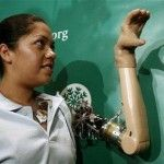 tangan palsu bionic