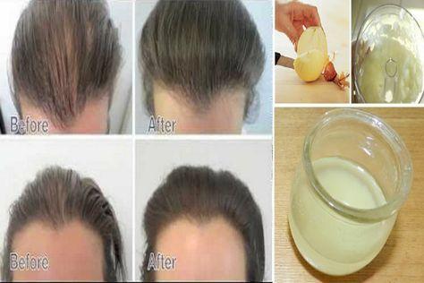 Ez az egyszerű lé megszünteti a legrosszabb hajhullást, és kicseréli a hajadat