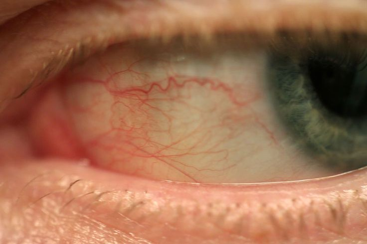What causes bloodshot eyes and red eyes?