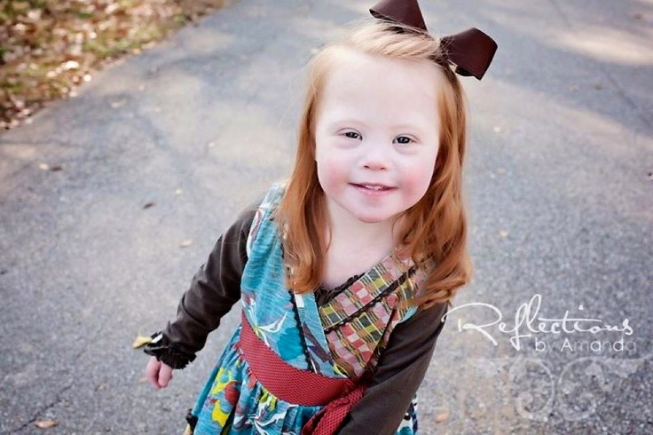What Down Syndrome Looks Like