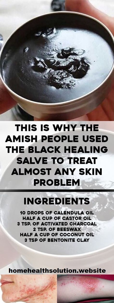 The Amish people used the black healing salve as a natural remedy for centuries.