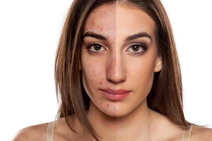 6 techniques pour contrer l'acné noté 3.33 - 3 votes L'acné, le cauchemar delapuberté! Cette maladie de la peau touche plus de 80% des adolescents chaque année et pose parfois certains complexes. Il est possible de limiter les effets de l'acné sur l'organisme et la peau avec des solutions naturelles. Voici 6 méthodes pour combattreles...