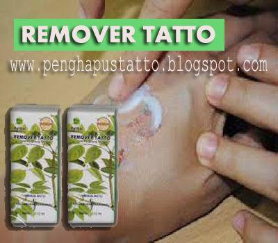 PENGHAPUS TATTO PERMANEN: REMOVER TATTO~PENGHAPUS TATTO AMPUH !!!