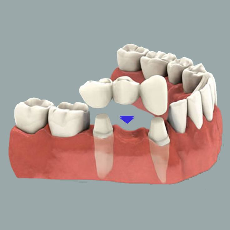 Dental Bridge is a restoration method used to close or bridge the gap between one or more missing teeth. Bridges help in avoiding dental plaque, tooth decay and gum diseases.They also improve the aesthetic appearance of a person by providing him/her a beautiful smile. While, the procedure costs around USD 1,200 in Singapore, it costs only USD 180 in Thailand. To get a free quote for an affordable treatment, visit: http://www.medhalt.com/cheap-dental-bridge-overseas/